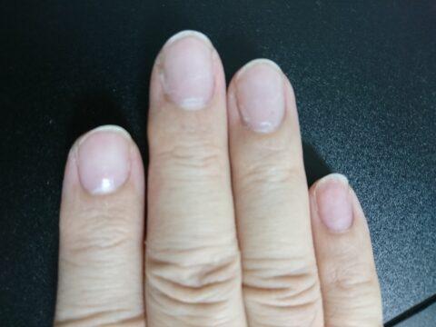 人差し指、中指、薬指、小指の爪